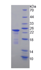 Recombinant Leucine Rich Repeat Containing G Protein Coupled Receptor 5 (LGR5)