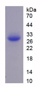 Recombinant Far Upstream Element Binding Protein 1 (FUBP1)