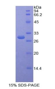 Recombinant Selenium Binding Protein 1 (SELENBP1)
