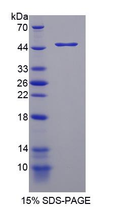 Recombinant Tryptophan Hydroxylase 2 (TPH2)