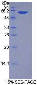 Recombinant Hydroxyacid Oxidase 1 (HAO1)