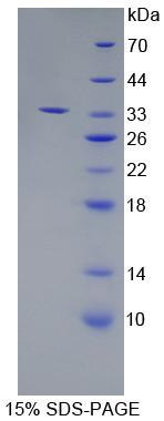 Recombinant Endoplasmic Reticulum Aminopeptidase 2 (ERAP2)