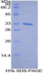 Recombinant Receptor Tyrosine Kinase Like Orphan Receptor 1 (ROR1)