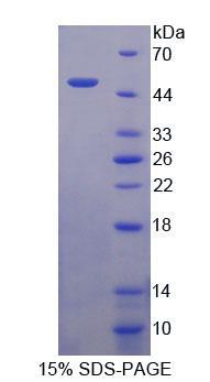 Recombinant Transcobalamin II, Macrocytic Anemia (TCN2)