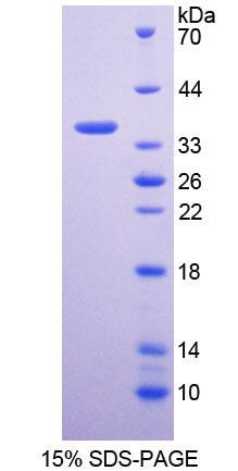 Recombinant Glycine-N-Methyltransferase (GNMT)