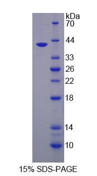 Recombinant Uracil DNA Glycosylase (UNG)