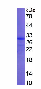 Recombinant Ubiquitin Carboxyl Terminal Hydrolase L3 (UCHL3)