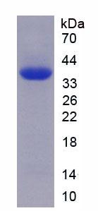 Recombinant Toll Like Receptor Adaptor Molecule 1 (TICAM1)
