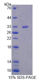 Recombinant Serine/Threonine Kinase 11 (STK11)