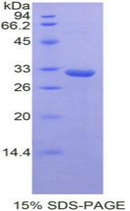Recombinant STAM Binding Protein (STAMBP)