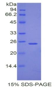 Recombinant Peroxisome Proliferator Activated Receptor Gamma Coactivator 1 Alpha (PPARgC1a)