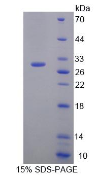 Recombinant Plexin B1 (PLXNB1)