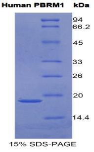 Recombinant Polybromo 1 (PBRM1)