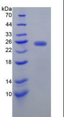 Recombinant N-Acetylgalactosaminidase Alpha (NAGa)