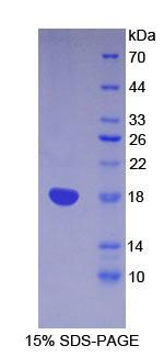 Recombinant Lymphocyte Antigen 96 (LY96)