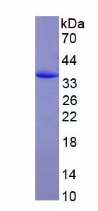 Recombinant Leucine Rich Repeat Kinase 2 (LRRK2)