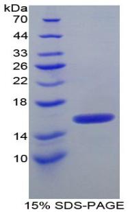 Recombinant Inter Alpha-Globulin Inhibitor H4 (ITIH4)