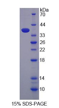 Recombinant Gamma-Glutamyl Hydrolase (gGH)
