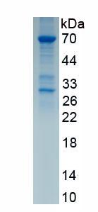 Recombinant Eosinophil Peroxidase (EPX)
