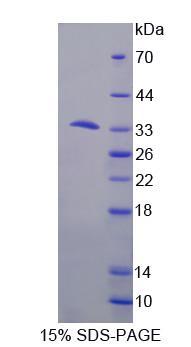 Recombinant Dynein, Cytoplasmic 1, Heavy Chain 1 (DYNC1H1)