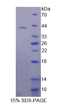 Recombinant Dihydroorotate Dehydrogenase (DHODH)