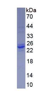 Recombinant Slingshot Homolog 2 (SSH2)