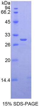Recombinant GLI Family Zinc Finger Protein 3 (GLI3)