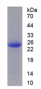 Recombinant Succinate Dehydrogenase Complex Subunit B (SDHB)