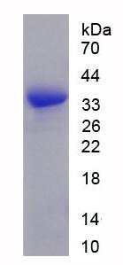 Recombinant Succinate Dehydrogenase Complex Subunit A (SDHA)