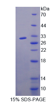 Recombinant F-Box And WD Repeat Domain Containing Protein 7 (FBXW7)
