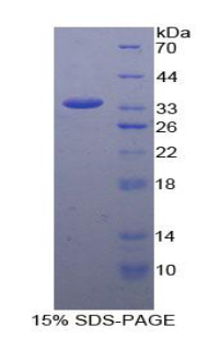Recombinant Coiled Coil Domain Containing Protein 80 (CCDC80)