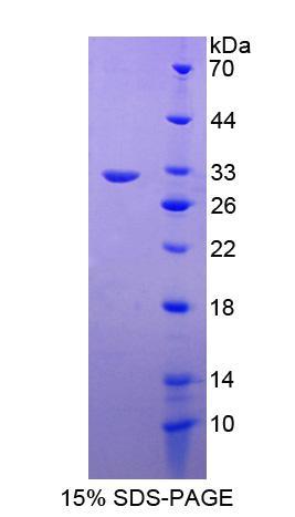 Recombinant RAB5A, Member RAS Oncogene Family (RAB5A)