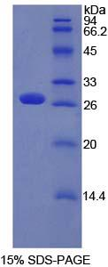 Recombinant Patched Homolog 1 (PTCH1)