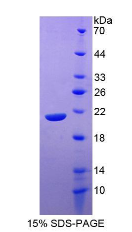 Recombinant Signaling Lymphocytic Activation Molecule Family, Member 7 (SLAMF7)