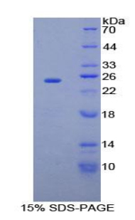 Recombinant Sprouty Homolog 2 (SPRY2)