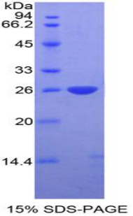 Recombinant DIX Domain Containing Protein 1 (DIXDC1)