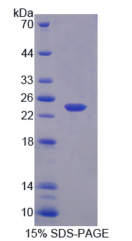 Recombinant Growth Arrest And DNA Damage Inducible Protein Gamma (GADD45g)