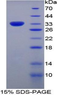 Recombinant Myxovirus Resistance 1 (MX1)