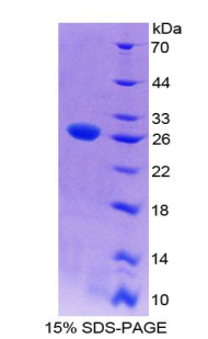 Recombinant WNT Inhibitory Factor 1 (WIF1)