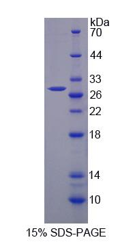 Recombinant Toll Interleukin 1 Receptor Domain Containing Adaptor Protein (TIRAP)