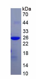 Recombinant Mitochondrial Ribosomal Protein S4 (MRPS4)