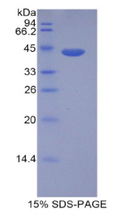 Recombinant Histone Cluster 1, H2ad (HIST1H2AD)