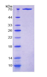 Recombinant Cancerous Inhibitor Of PP2A (CIP2A)