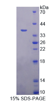 Recombinant A Disintegrin And Metalloprotease 1 (ADAM1)