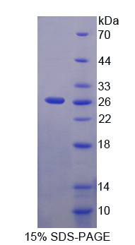 Recombinant Mab21 Domain Containing Protein 1 (MB21D1)