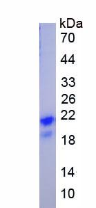 Recombinant Unique Cartilage Matrix Associated Protein (UCMA)