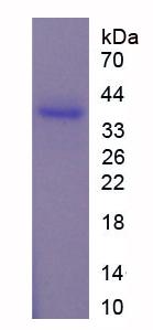 Recombinant ADP Ribosylglutamate hydrolase (AF1521)
