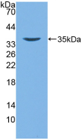 Active Defensin Beta 2 (DEFb2)