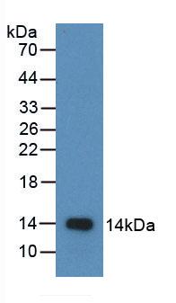Active Macrophage Inflammatory Protein 1 Beta (MIP1b)