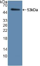 Active Elastase 2, Neutrophil (ELA2)
